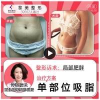 减肥塑形 ❤超平衡网状吸脂术    单部位❤爆款项目