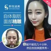 单部位脂肪填充 北京面部填充 脂肪填充单部位 10年以上整形从业专家亲诊 打造完美心形脸