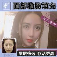 北京面部脂肪填充+PRP 饱满圆润 肤色更佳 面部年轻化