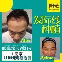 发际线种植 种植发际线 4D高密度种植 不剃发的种植术 ①微创损伤小 ②存活率高 ③效果自然