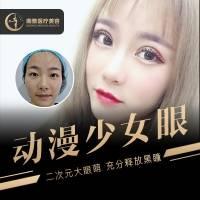 双眼皮胎式隐痕 全切双眼皮+去皮+去脂 可升级动漫少女眼 保留血管网 3-5天拆线 淤痕隐形